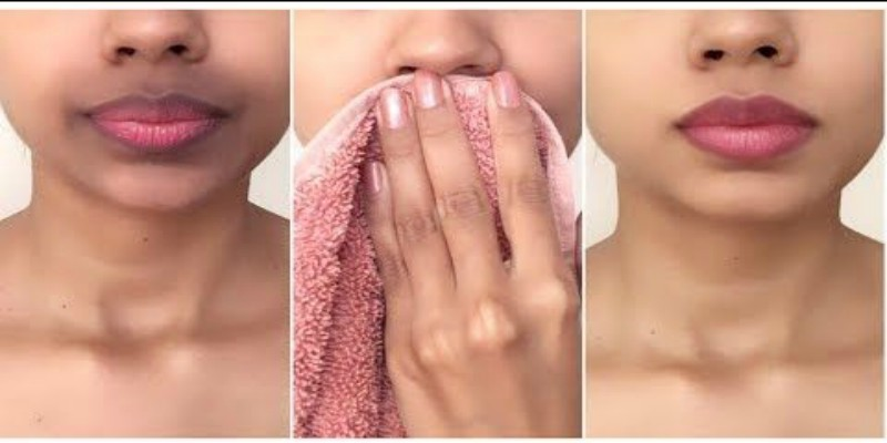 DIY for hyperpigmentation around the mouth. Homeremedies